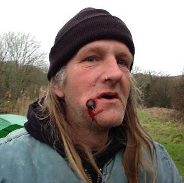 Fishing sinker bullet big kype for Fishing hook accidents